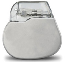 pacemaker-placement.jpg